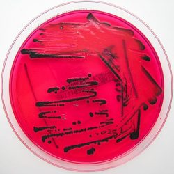 salmonella_species_growing_on_xld_agar_-_showing_h2s_production